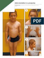 Oligodontia and Skeletal Anomalies in a Young Boy Contemporarypediatrics.modernmedicine.com