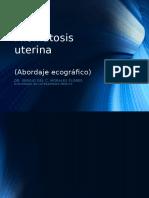 Miomas Por Ecografia