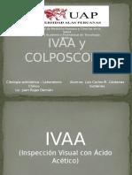 IVAA y COLPOSCOPIA .Citologia Exfoliativa.