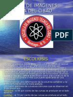 Escoliosis p