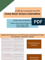 Como Hacer Lectura Sistematica de Un EKG 2016
