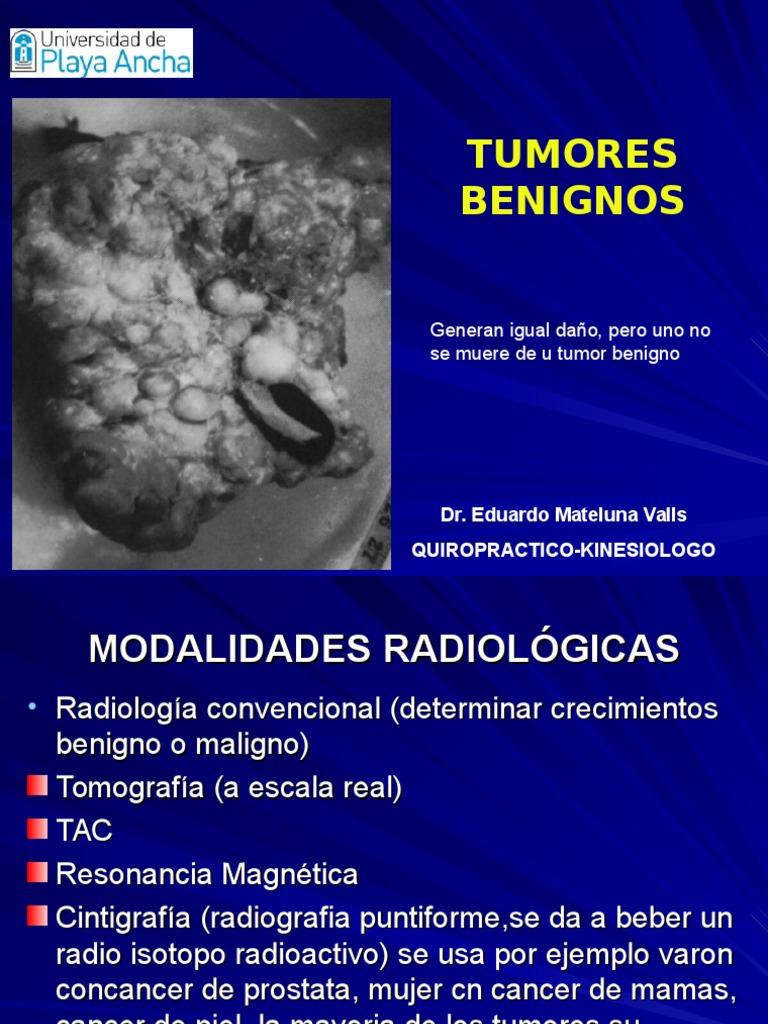 cáncer de próstata según hamer lab