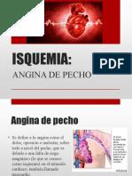 angina-130914125628-phpapp02