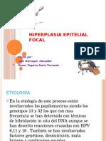 hiperplasia epitelial focal