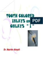 Microsoft Powerpoint - Tooth Colored Inlays and Onlays_ i