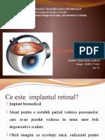 Implant Epiretinal