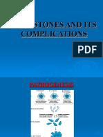 Galls Stones