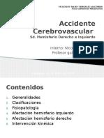 2º Accidente Cerebro Vascular