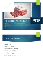 Case Prurigo Nodularis