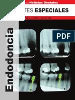 Reportes Especiales - Endodoncia