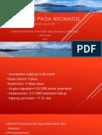 Tata Laksana Kejang Pada Neonatus - Paramedis