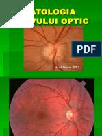 Patologia Nervului Optic