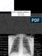 ppt radiologi toraks