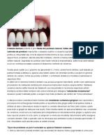 Fatetarea dintilor1