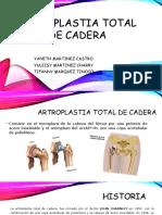 Artroplastia Total de Cadera Yuleisy