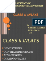Inlays