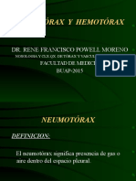 Neumotórax y Hemotórax.