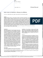Rare Cases of Meniere Disease in Children