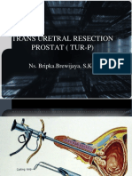 Trans Uretral Resection Prostat Tur-p