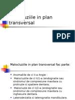 Malocluziile in Plan Transversal