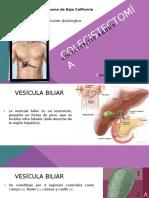 Colecistitis Aguda - Colecistectomía