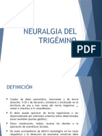 Neuralgia Del Trigémino