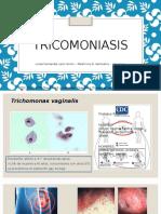 Tricomoniasis CDC 2015