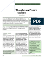 Modern Thoughts on Fissure Sealants