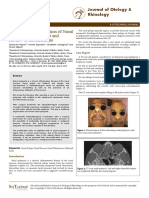 Malignant Transformation of Nasal Polyposis Case Report and Review of the Literature WeCR