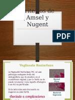 Criterios de Amsel y Nugent