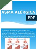 Asma Alérgica (2)