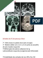 Carcinoma sebáceo // Radiologia