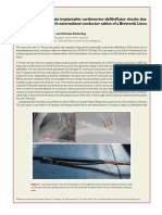 Repetitive Inappropriate Implantable Cardioverter Defibrillator Shocks Due to Insulation Failure With Externalized Conductor Cables of a Biotronik Linox SD ICD Lead