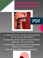 Sesion Clinica DISFAGIA