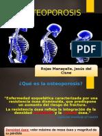 osteoporosis_primaria.ppt