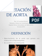 Coartacion de Aorta