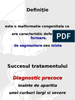 Scolioze congenitale
