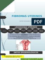 Fibromas Uterinos
