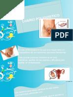 Diapositivas ovario poliquistico