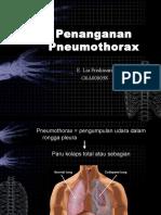 Penanganan Pneumothorax