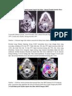 Terapi Radiasi Lanjutan Untuk Kanker Kepala Dan Leher