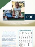 down syndrome powerpoint-a  cornelius