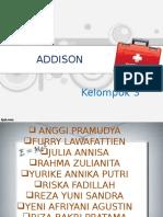Ppt Addison