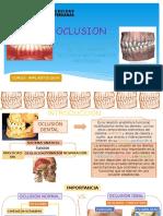Oclusion y Desoclusion