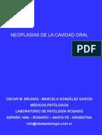 Neoplasias de La Cavidad Oral