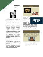 Traumatismos y Fracturas Macizo Faciales