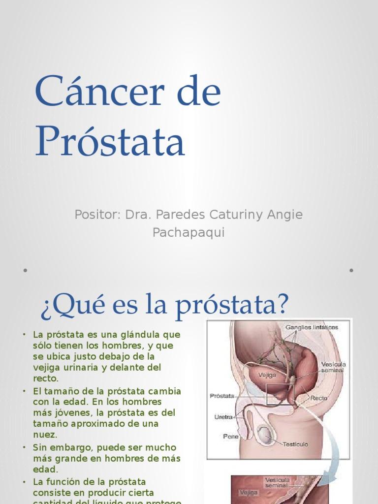 que es la próstata en el hombre