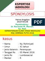 Ekspertise Spondylosis