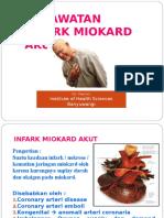 Akut Miokard Infark