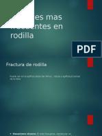 Lesiones Mas Frecuentes en Rodilla